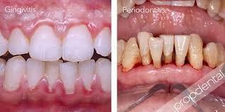 Зъбна рецеция и пародонтит