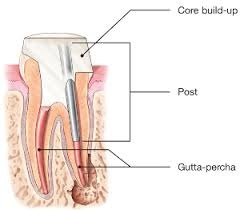 Щифтово изграждане на зъб