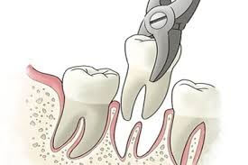 Вадене на зъб