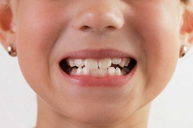Детски зъби