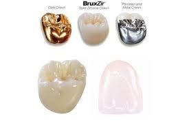 Зъбни коронки