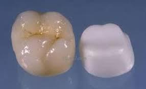Зъбна коронка