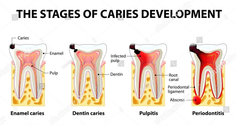 Pulpitis and Periodontitis