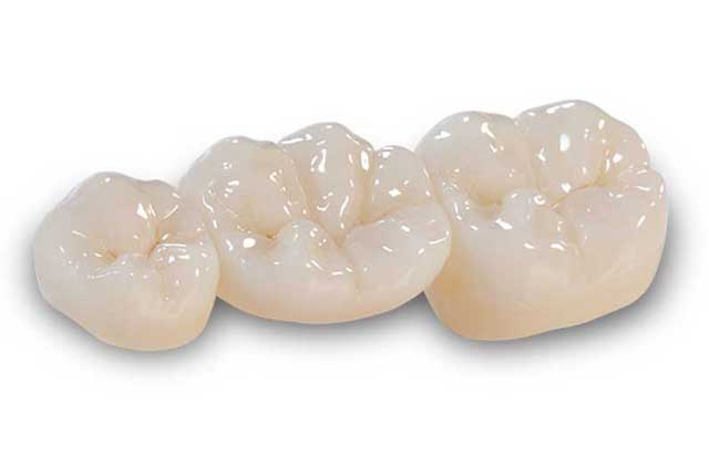 Dental Bridg