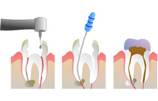 Teeth Retreatment