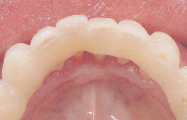 Teeth Splinting